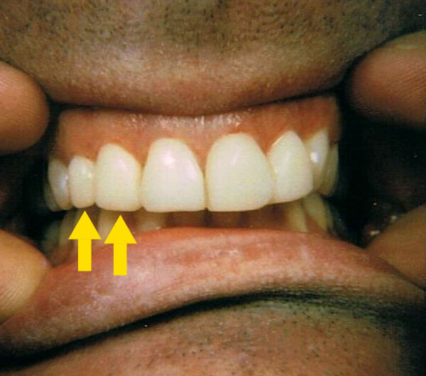 closeup cosmetic dentistry after