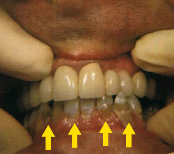 closeup cosmetic dentistry before